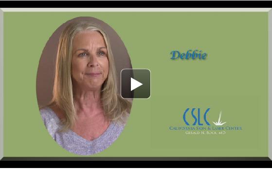 Video image ,Dermatologist Stockton